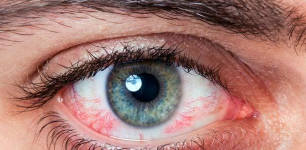 ojos llorosos y como remediarlo